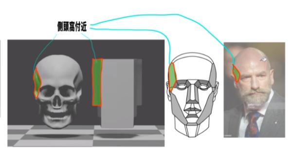 側頭窩の分析