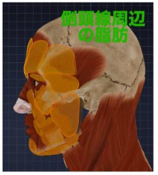 側頭窩周辺の脂肪