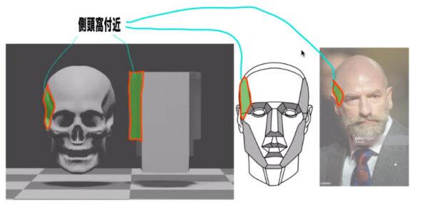 側頭線および側頭窩