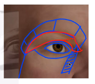 ルーフと眉弓骨の分類