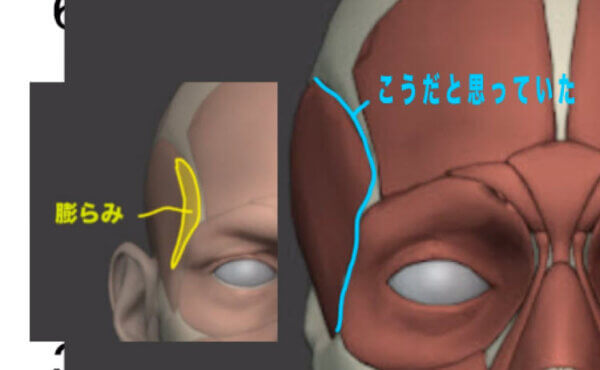 側頭線のふくらみについて