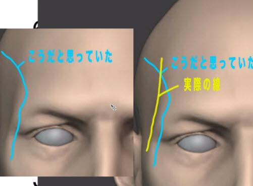 側頭窩のふくらみについて