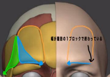 眉中心の膨らみは脂肪が関連しているのか